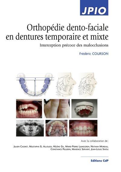 Orthopédie dento-faciale en dentures temporaire et mixte : interception précoce des malocclusions
