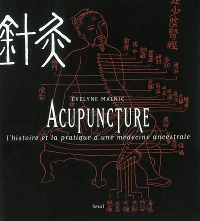 L'acupuncture : l'histoire et la pratique d'une médecine ancestrale / Evelyne Malnic | Evelyne Malnic
