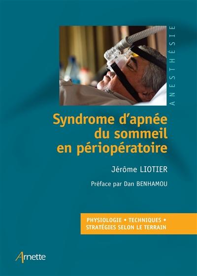 Syndrome d'apnée du sommeil en périopératoire : physiologie, techniques, stratégies selon le terrain